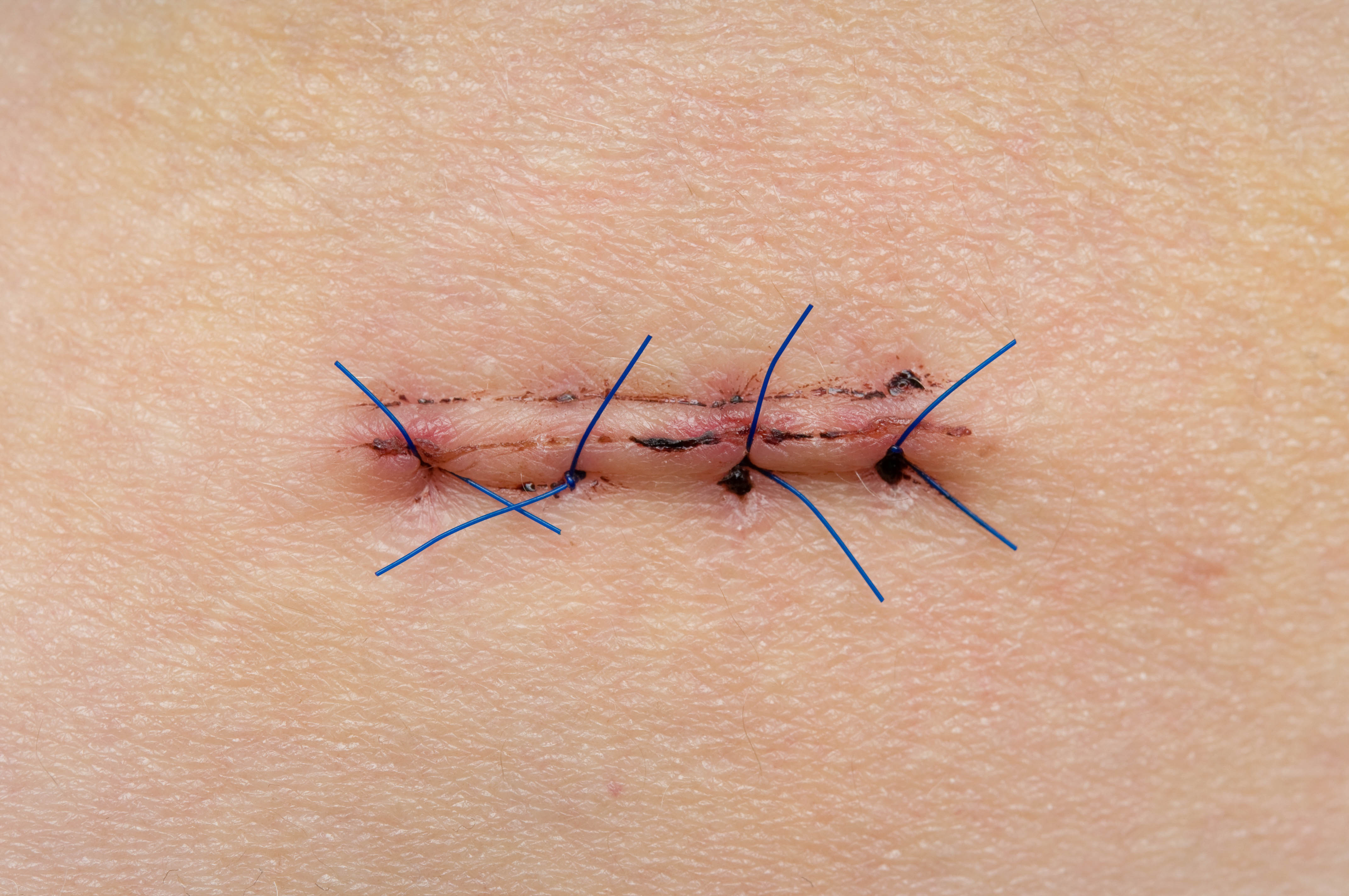 The-history-of-the-suture-option2